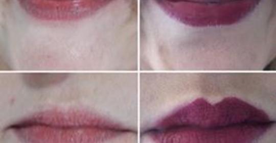 Aumento de lábios – Ácido Hialurónico