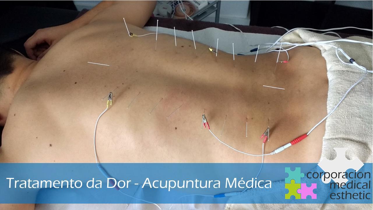 acupuntura em braga