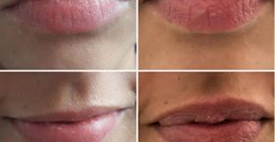 Preenchimento de lábios – Ácido Hialurónico
