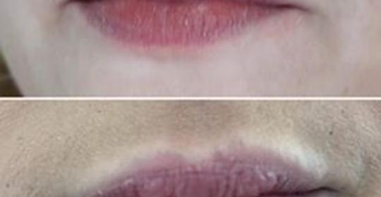 Enchimento de lábios – Ácido Hialurónico