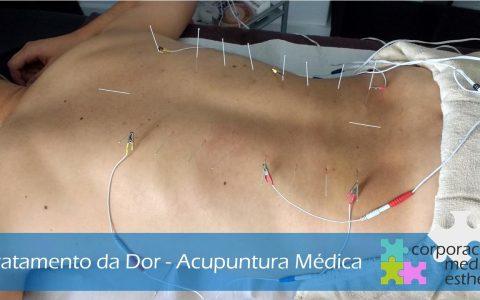 Dores de costas? Acupuntura Médica – Braga